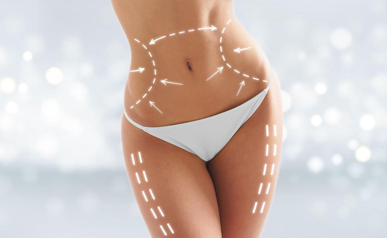 Éviter la liposuccion grâce au Coolsculpting, la technique de cryolipolyse